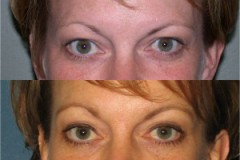 Endoscopic Browlift with Upper eyelid surgery