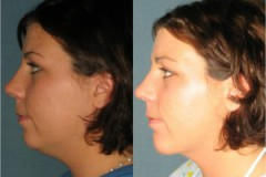 Chin Augmentation with submental liposuction
