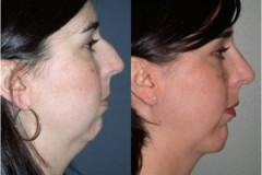 Chin Augmentation with Rhinoplasty