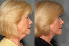 Facelift with Upper and Lower Eyelid Surgery