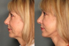 Facelift with Upper Eyelid Surgery