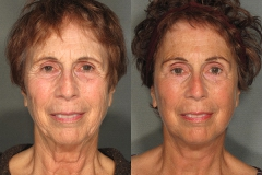 Facelift with Browlift and Lower Eyelid Surgery