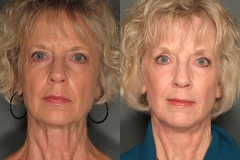 Deep Erbium Facelift with Upper Eyelid Surgery