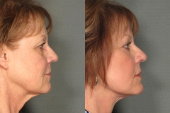 Facelift with Eyelid Surgery