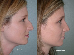 Rhinoplasty Portland Nose Job Surgery Portland Or Dr David Magilke
