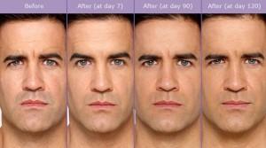Botox-Capture2