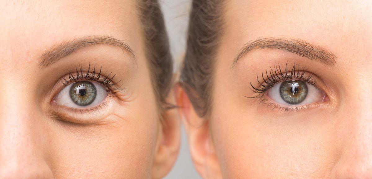 Blepharoplasty in Portland